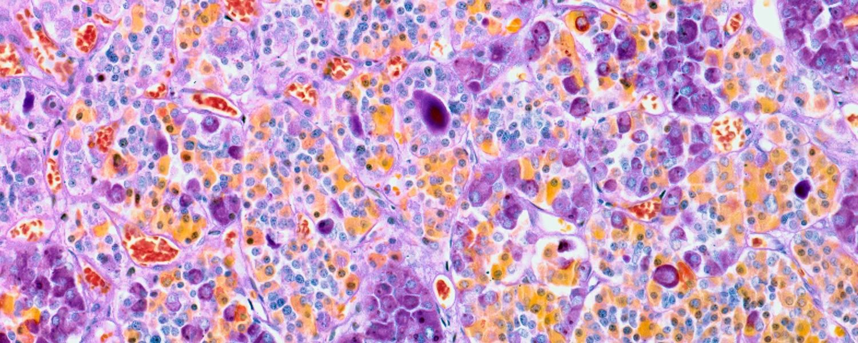 Микрограмма с изображением гормонов